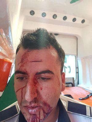 Craiova: Politist de la Rutiera, lovit in cap cu un telefon mobil